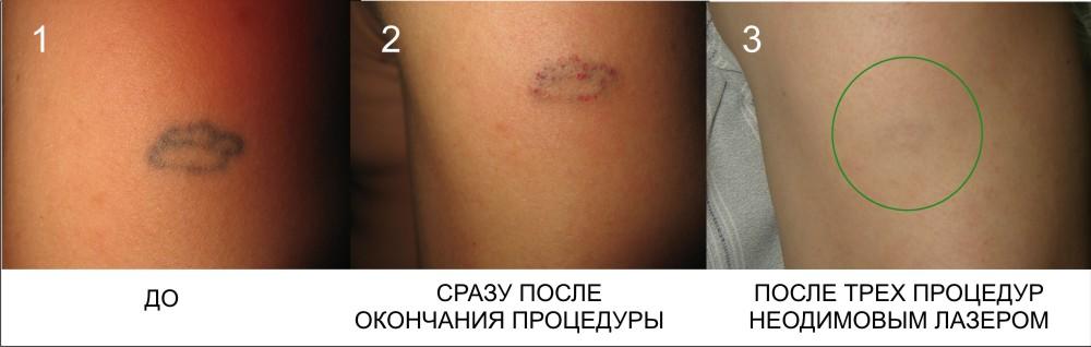 Удаление шрамов, татуировок, пигментации