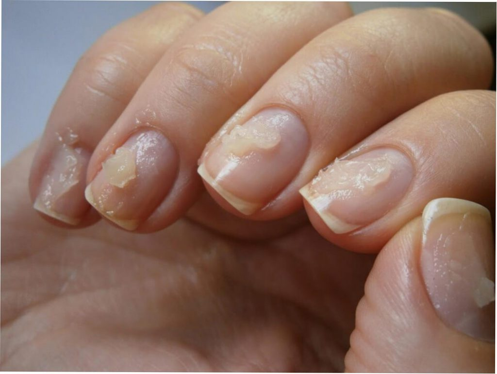 Средства для восстановления ногтей после шеллака