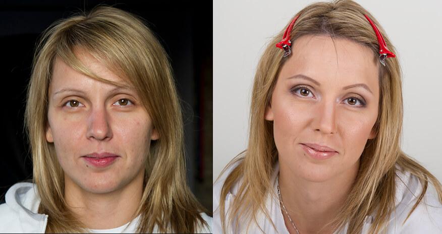 Коррекция черт лица для визуального уменьшения носа