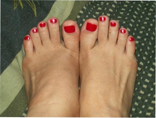 Готовим ножки к педикюру