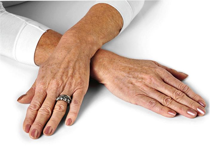 Как избавиться от пигментации на руках