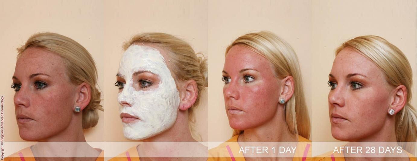 Cystic Acne  Treatment for Severe Cystic Acne and Pimples
