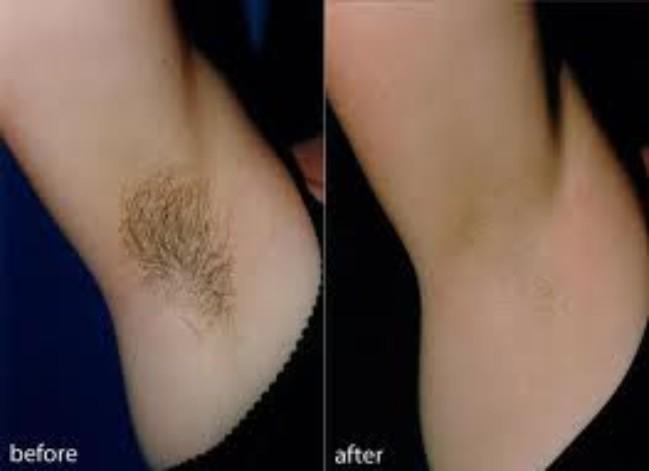 Риск шрамообразования и врастания волос после лазерной эпиляции волос возрастает многократно?