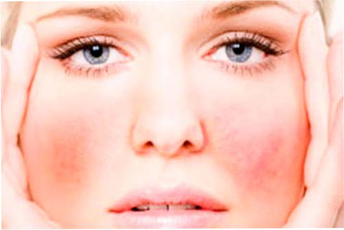 Уход за кожей с куперозом