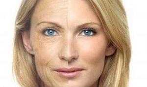 Как выглядеть моложе: безоперационная подтяжка лица
