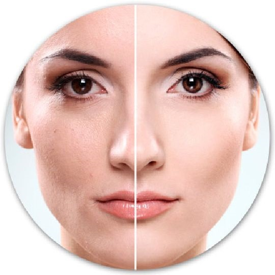 Как выглядеть моложе: химический пилинг кожи