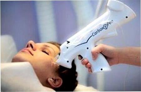 Инъекции углекислого карбокситерапия