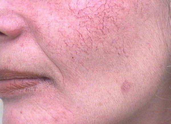 Купероз кожи лица: смириться или бороться?