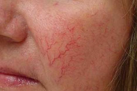 Причины появление купероза