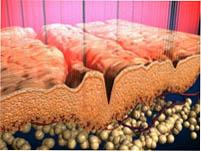Как действует наноперфорация