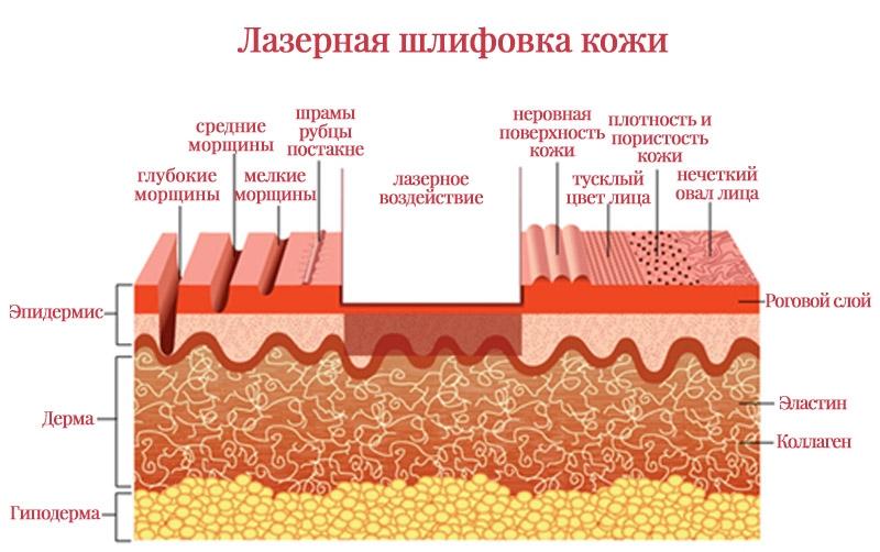 Лазерная шлифовка кожи