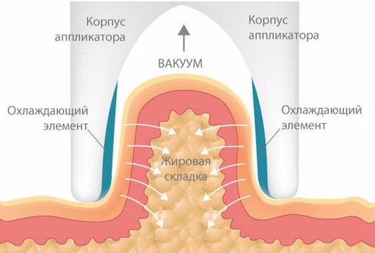 Как проводится криолиполиз
