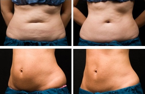 Виды процедур аппаратной косметологии: криолиполиз