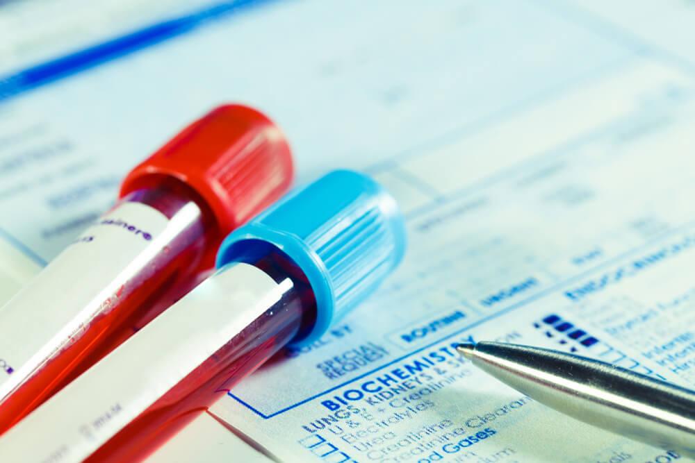 О чем говорит повышение 17-ОН прогестерона?
