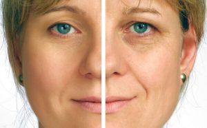 how the natural aging process affects facial skin and muscle tone Wrinkles are also more likely to be deeper in smokers tobacco smoke gives skin an unhealthy colour and coarse texture, as well what you can do: stop smoking how facial muscle contractions cause wrinkles wrinkles at the corners of the eyes (crow's feet) or between the eyebrows (frown lines) are thought to be caused by small muscle.