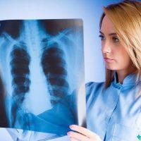 Пневмония без симптомов: как обнаружить заболевание