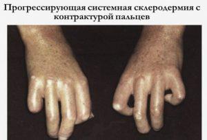 Лечение очаговой склеродермии