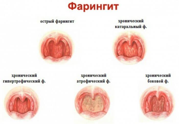 Фарингит симптомы лечение антибиотиками