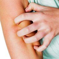 Симптомы при поражении отдельными разновидностями паразитов